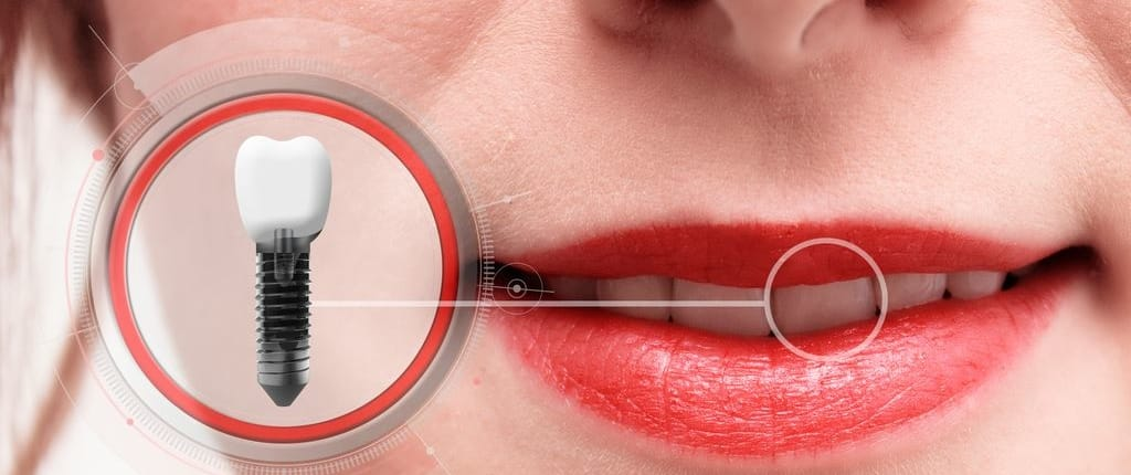 Zahnimplantat an einer Frau