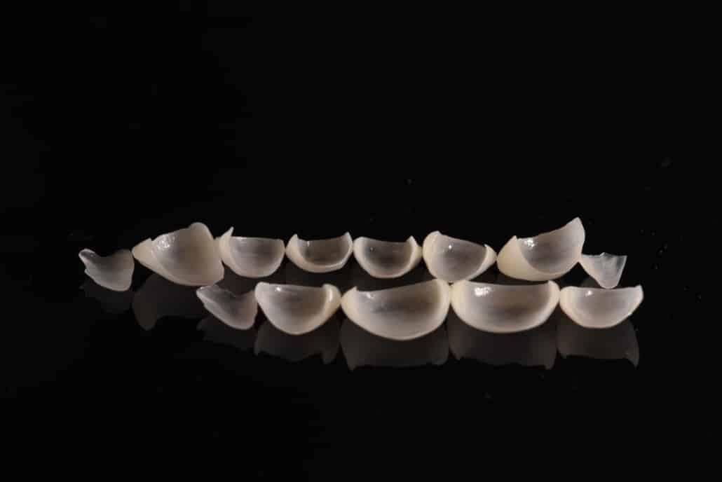 Nahaufnahme von Keramikveneers - nebeneinander Bodenansicht