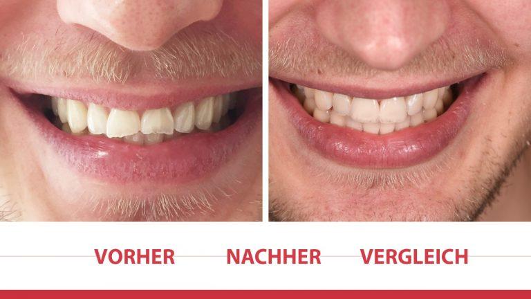 Veneers-Vorher-Nacher-Vergleich-768x432