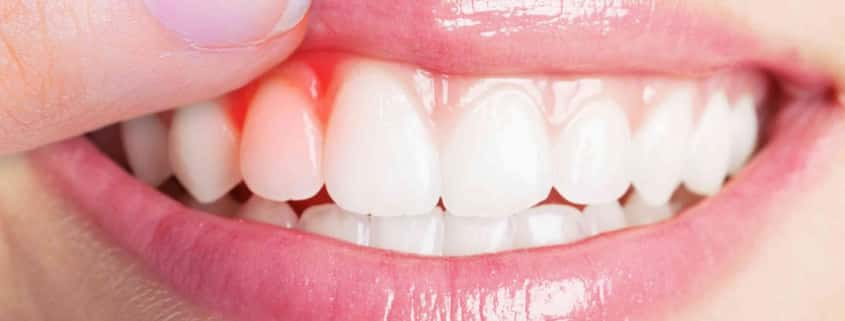 gesundes Zahnfleisch bei einer Frau