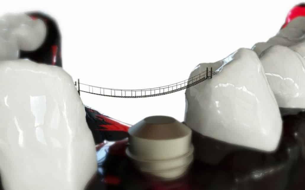 all on 4 - neue Zähne an einem Tag