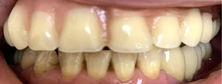 Fallbeispiel Zahnlose Patientin - Vorherbild