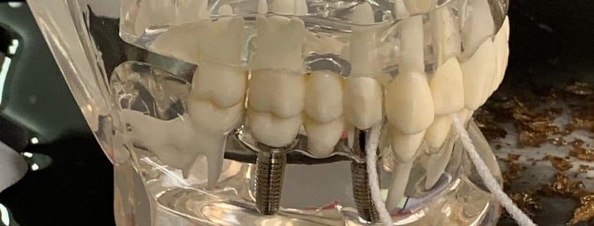 Zahnseide ist durch die Zahnlücke eines Kiefermodells geführt